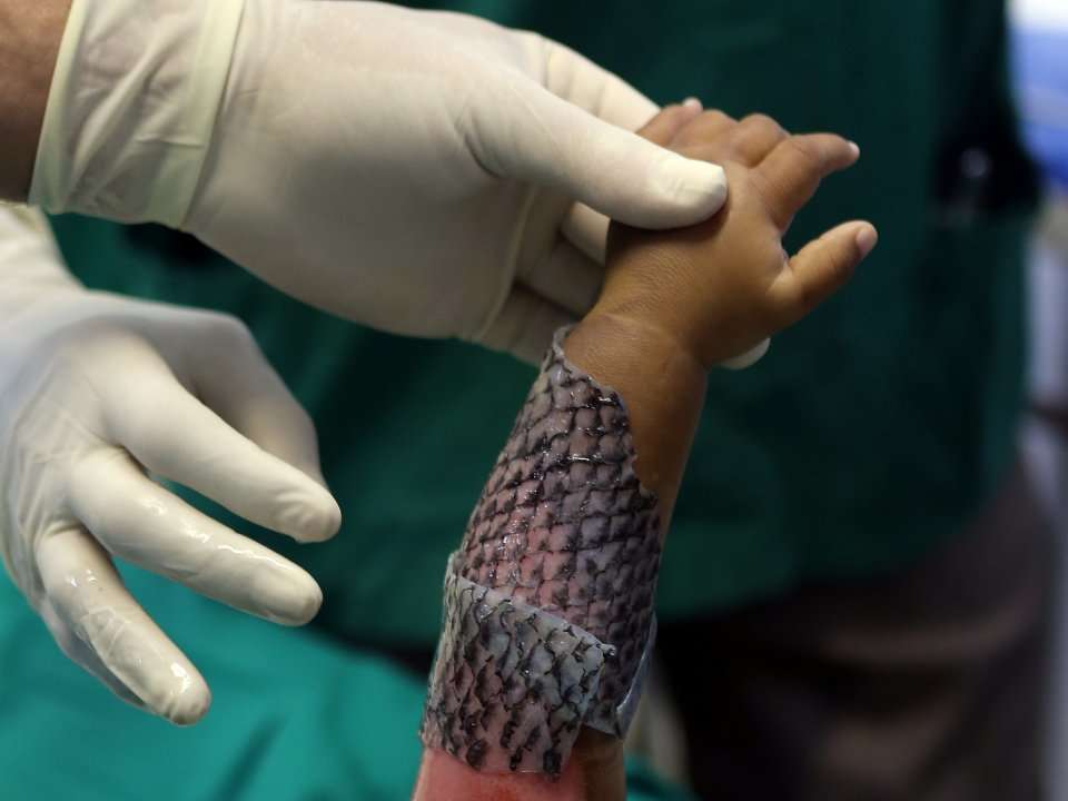 Doctors are trying an unorthodox approach to treat burn victims - using fish skin