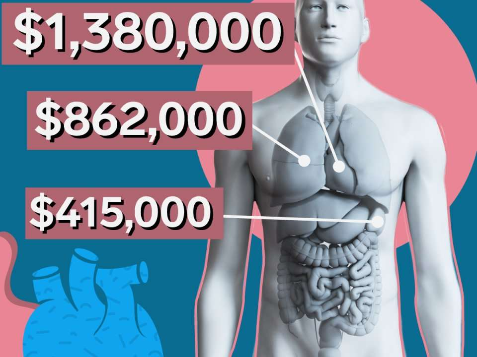 Why organ transplants are so expensive in the US | Business