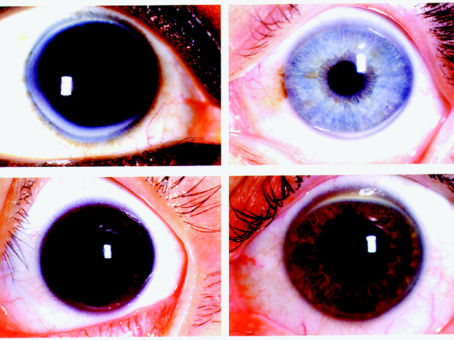Gray rings around the iris can signal high levels of cholesterol in the blood.